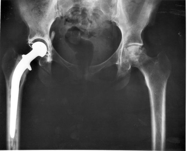 Hip_replacement